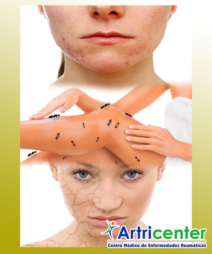 Cómo lidiar con problemas de fibromialgia y piel Ya sabemos que la fibromialgia viene con toda una serie de síntomas y efectos secundarios, y por lo tanto es fácil para algo que pasa por alt…