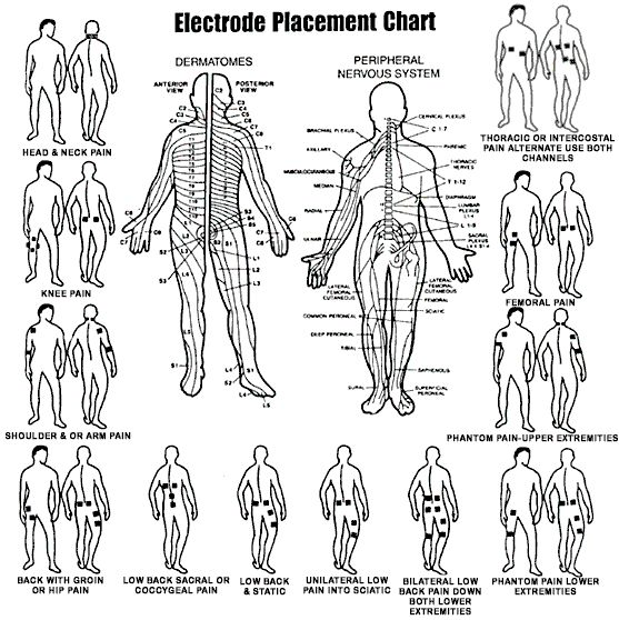 placement of electrodes for tens unit google search tens placement pinterest. Black Bedroom Furniture Sets. Home Design Ideas