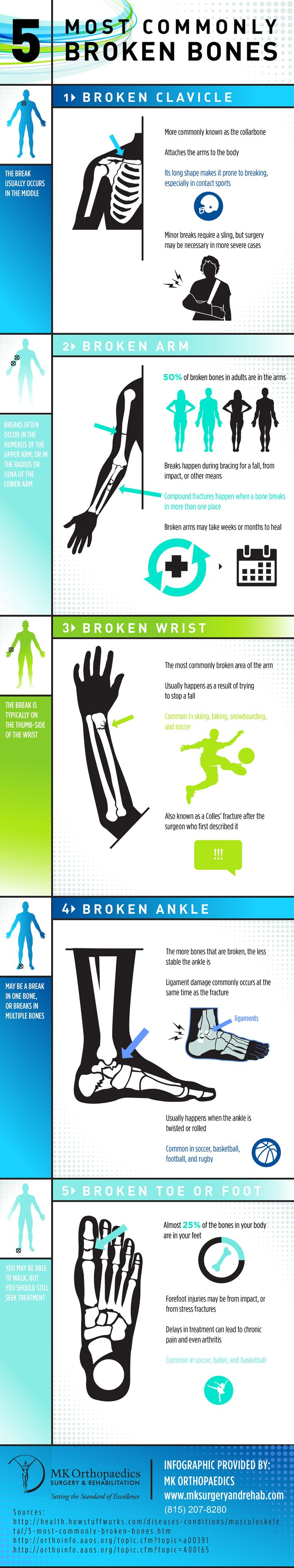 Infographic of the 5 Most Commonly Broken Bones. Did you know that 50% of broken bones in adults are in the arms? #medicine #science #sports #heath #emergencies #bones #fractures