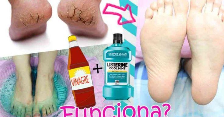 Listerine e vinagre para os pés