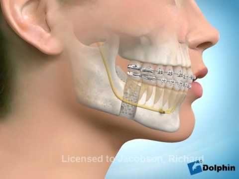 Jaw Surgery (Orthognathic Surgery) Animation - Lower Jaw - YouTube