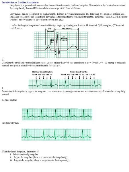 Introduction to Cardiac Arrythmias Arrythmia is a generalized term used to denote disturbances in the heart's rhythm. Normal sinus rhythm is characterized.