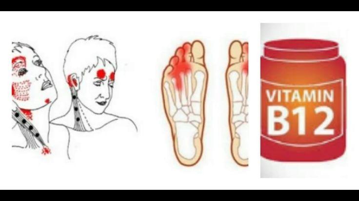 Nunca ignores estas señales de advertencia de deficiencia de vitamina B12, esto es serio - YouTube