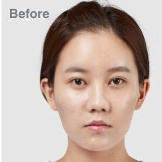 "[Before] TL Trinity(facial contouring, eyes, nose)��������. . ��June Promotions�� . 1️⃣��Triple Vline�� Long curved Jaw reduction & chin surgery combined with ""MBC"" . ✔️M (masseter muscle reduction) ✔️B (bone reduction) ✔️C (cortical osteotomy) . 2️⃣��Secret Facial Contouring�� Zygoma reduction & mini vline (chin reduction) with dissolvable screws : . Airport check ����xray ����mri���� Hubbies and boyfriends will never know���� . 3️⃣��Shading Rhinoplasty�� Perfect solution for ""WATCH"" . ✔️W…"