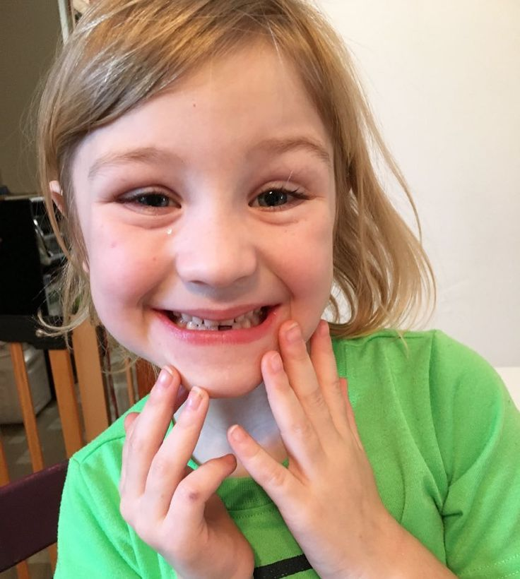First tooth lost!! This chick totally doesn't believe in the tooth fairy. Vampires and zombies are a real concern but it's the tooth fairy that she calls bullshit on. #driedtearandall