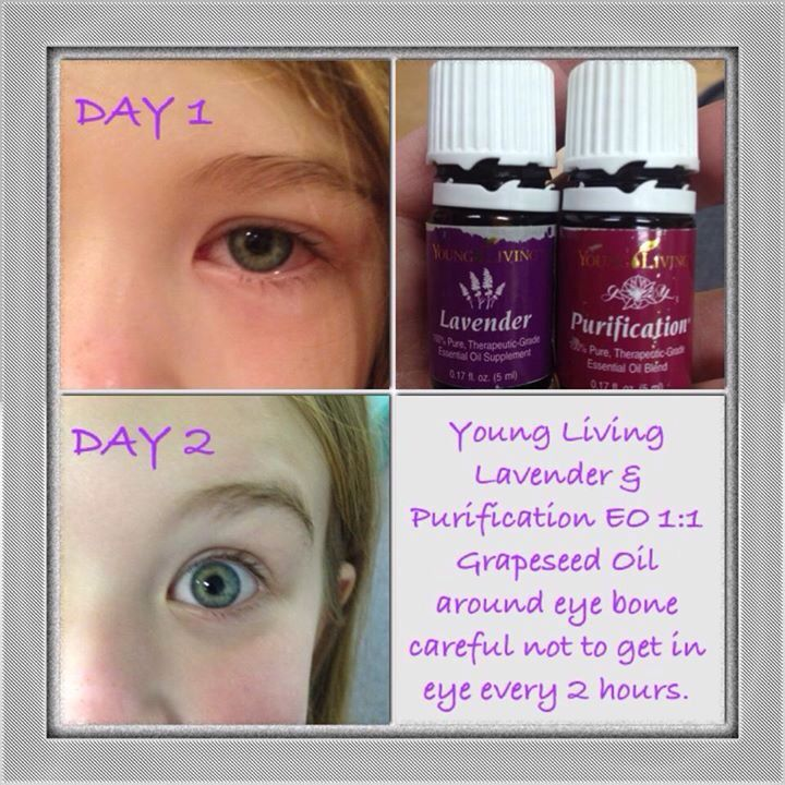 Young Living treatment for pink eye