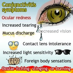Learn about the major symptoms of conjunctivitis
