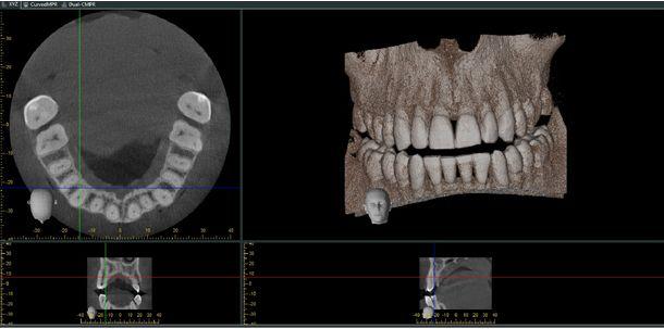 Tomografie szczęki lub żuchwy wykorzystujemy do: oceny jakości i wysokości kości, oceny zębów zatrzymanych, leczeniu endodontycznym (sprawdzenie ilości kanałów).