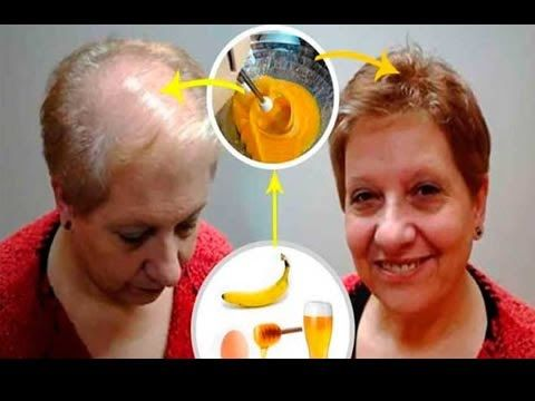 As I Pulled My Hair The Fall In 1 Month And I Did Grow Fast With This Recipe 2 Minutes - YouTube