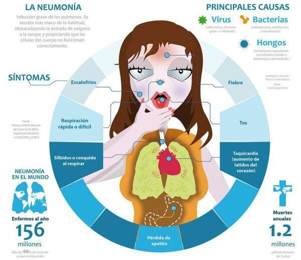 Causas de la neumonía