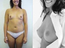 Ella, Age 28, A cup to a large C cup, 350cc high profile implant