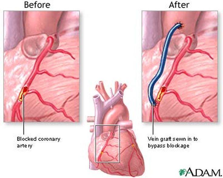 What Is Quadruple Bypass Heart Surgery?