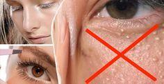 """Las bolitas blancas que suelen salir alrededor de los ojos, en ojeras, párpados o pómulos se llaman """"Milium""""; son quistes de queratina, bolitas de grasa duras que quedan atrapadas por varias capas de células muertas de la piel, quedan tapadas. Mucha gente confunde el """"Milium"""" con granitos, pero no tienen nada que ver, son cosas"""