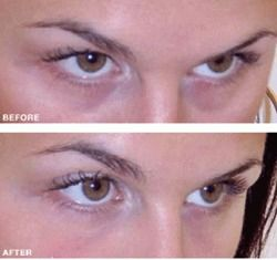 Have you ever considered using under eye fillers? Tear trough rejuvenation as the procedure for treating those dark under eye circles is caused, is becoming hugely popular as a non surgical way of dealing with the problem which gives excellent and long lasting results. Find out more about what is involved, the likely costs and what you should expect from a procedure of this type (helpful video on the page too!).