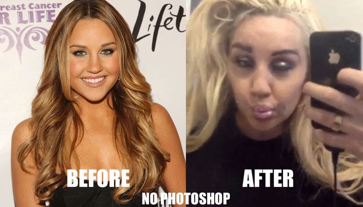 BEFORE AND AFTER DRUGS.. - Pinterest