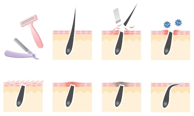How to Get Rid of Ingrown Hair? In this article, we are discussing several methods to get rid of ingrown hair. Did you notice some painful, inflamed and red outgrowth on your skin? They are an ingrown hair. They are the result of frequent shaving, waxing and using various other methods to remove hair on the regular basis. They... #AvoidIngrownHair, #BestMethodsToRemoveIngrownHairFast, #CureIngrownHair, #ExposeTrappedIngrownHair, #GetRidOfIngrownHair, #HomeRemediesToGetRidOf