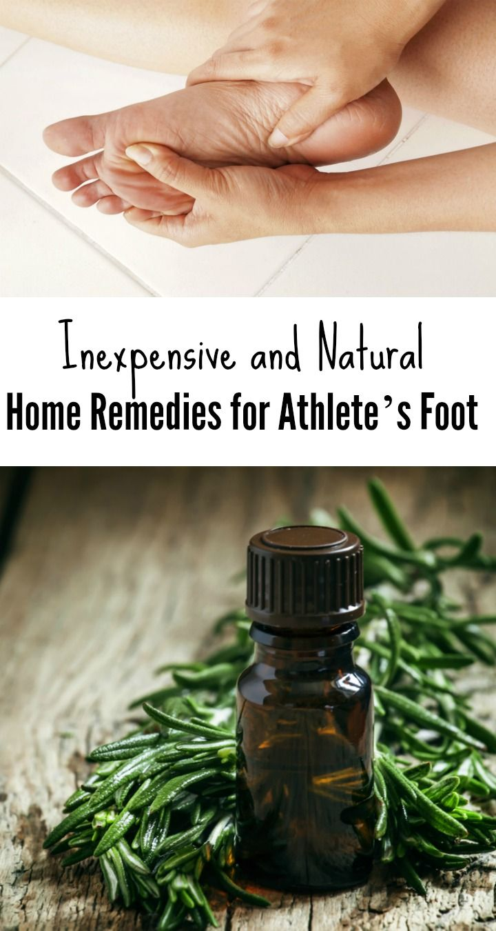 Pinterest athlete s foot skin rash causes and ear infection remedy