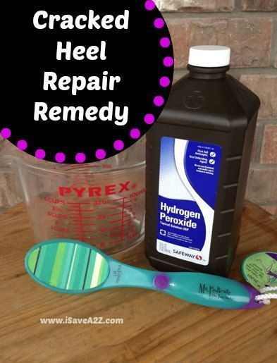 Cracked Heel Remedy Combine 2 cups of hydrogen peroxide and 2 cups of hot water in a foot soak. Sit for a full 30 minutes with your heels completely immersed in the solution. Completely dry your feet and immediately use the foot file or pumas stone to removed the dead skin. This is an easy process and only takes about a minute or two for each foot (depending on your condition)