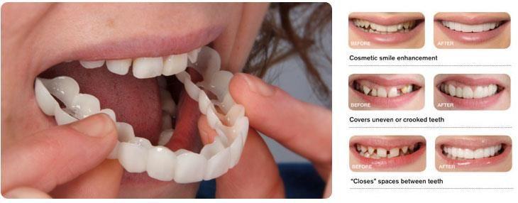Porcelain Veneers Houston Tx In 2020 Dental Crowns Dentist