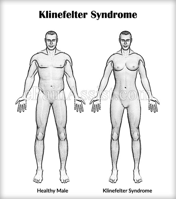 the symptoms and effects of klinefelter syndrome a genetic disorder affecting males Males with poly-x klinefelter syndrome have more than one extra x chromosome, so their symptoms might be more pronounced than in males with ks in childhood, they may also have seizures, crossed eyes, constipation, and recurrent ear infections.