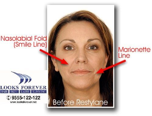 Restylane Dermal Filler What is: Restylane is an injected gel, it is made of a biodegradable, non-animal stabilized hyaluronic acid known as Hyaluronic acid. Hyaluronic acid is a natural substance, it is found in the body that helps to fill in skin. Restylane injection fills the creases to improve the appearance of fine lines and wrinkles. The Restylane gel is injected into the skin during treatment, and more than one syringe may be needed. Its results last for approximately six to nine…