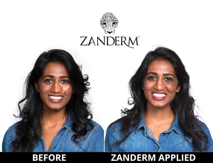 You are one step away from Vitiligo Camouflage! Shop for your Zanderm Now! Click Here >>