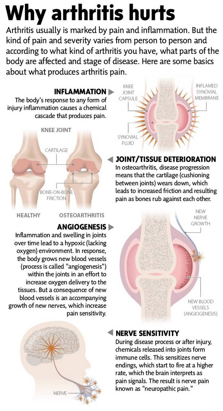 Stem cells, gene therapy offer hope for arthritis sufferers - The Globe and Mail