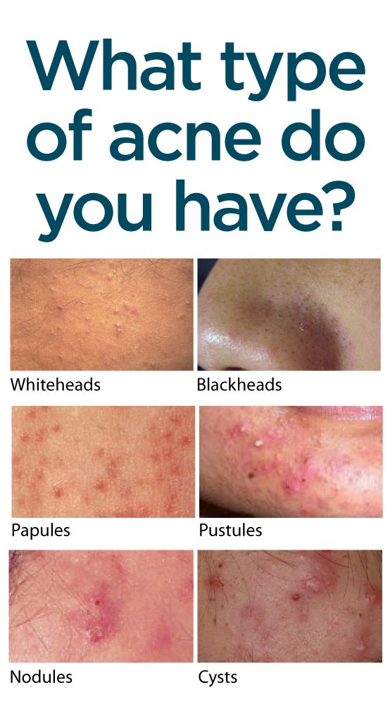 25+ best ideas about different types of acne on pinterest | types, Human Body