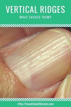 Natural Treatment For Nail Ridges