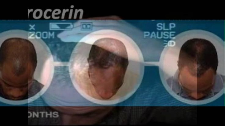 "Procerin Review - ""Best"" Male And Female Hair Loss Treatment"