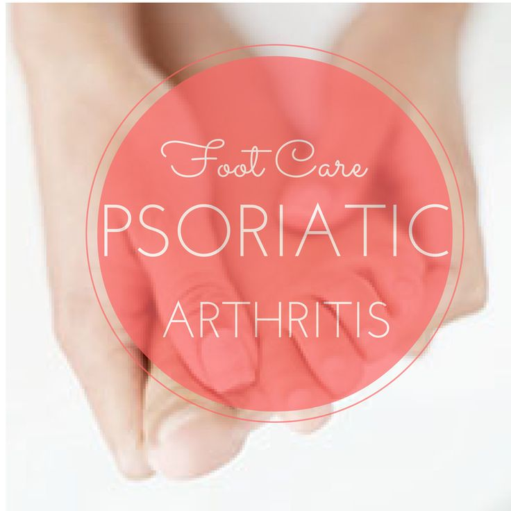 Foot pain can be one of the most frustrating symptoms of psoriatic arthritis, and it can threaten your mobility. Learn about treatments that can help.