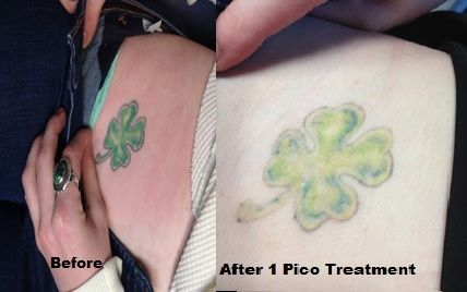 28 best tattoo removal images on pinterest natural for How much is picosure tattoo removal