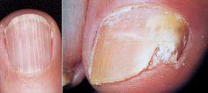 nehty plisen ryhy lamavost byliny bylinky babske rady olej koupel tinktura OSVĚDČENÝ TIP ZBYŇKA MLČOCHA: Plísně nehtů (onychomykózy) se zbavíte tak, že velmi jemně nastrouhaný česnek přiložíte na místo, kde se nachází plíseň nehtu. Celý prst obvažte náplastí nebo kouskem obvazu a nehte působit asi hodinu nebo déle. Totéž opakujte vždy s novým česnekem po několik dní. Nehet se bude uzdravovat a s odrůstáním se již plíseň nehtu nebude šířit. Platí, že všechny plísně nesnáší silice z česneku…