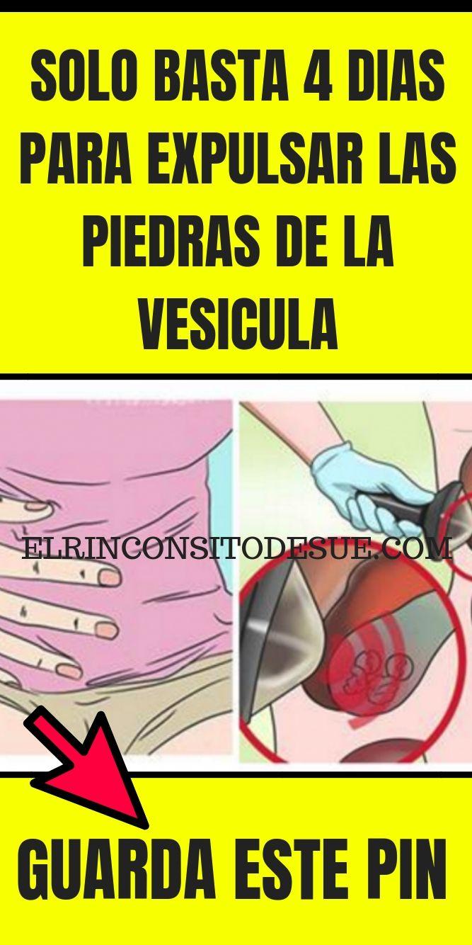 que pastilla tomar para dolor de vesicula