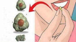 Cancer Cells Hate These 15 Foods: It Is Time To Start Eating Them! – Healthy Natural Guide