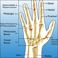 In our Hand Pain Information Center, we have covered lots of hand diseases and conditions, such as Boxer's Fracture, Hand Tendonitis, Rheumatoid Arthritis of Hands, Treatment Guide for Dislocation of Hand, Thumb and Fingers, Osteoarthritis of Hands, Dislocation of Hand, Thumb and Fingers, Fracture of Hand and Fingers etc..