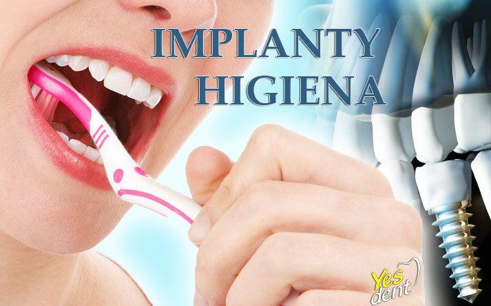 Jak dbać o implanty - poradnik pacjenta. #higiena #implanty #implantywrocław #wrocław #stomatolog #stomatologwrocław #yesdent