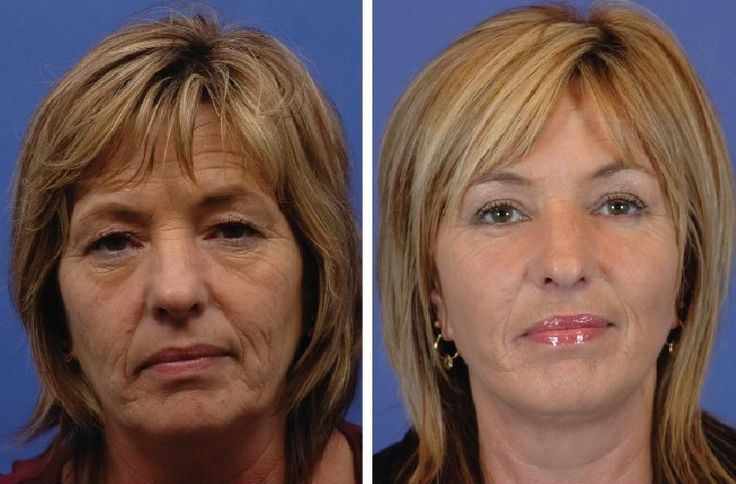 What Type Of Haircut For A Face With Sagging Jowls