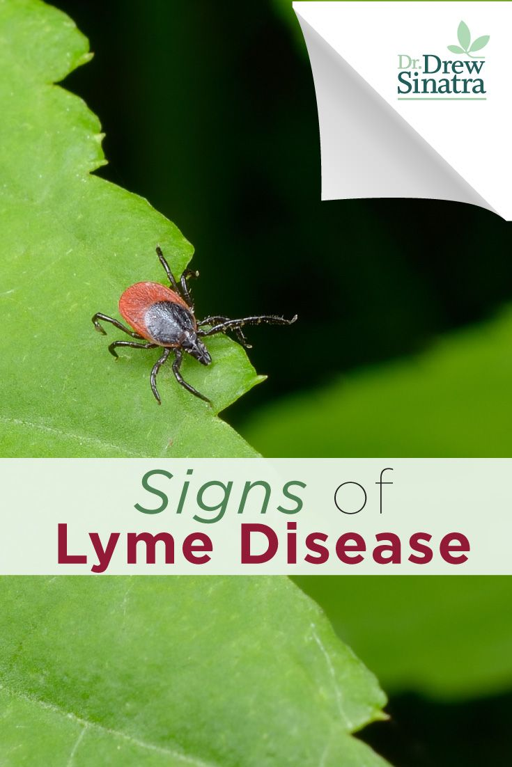 The symptoms of Lyme disease are very similar to other sicknesses, such as the flu. Read this to know how to distinguish them and get help (if you need it) immediately!
