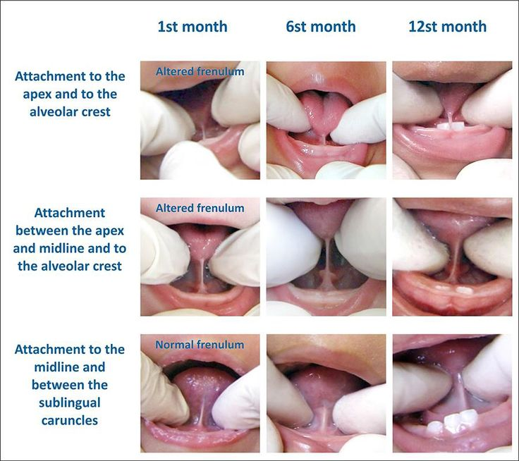 types of cleft lip and palate pdf