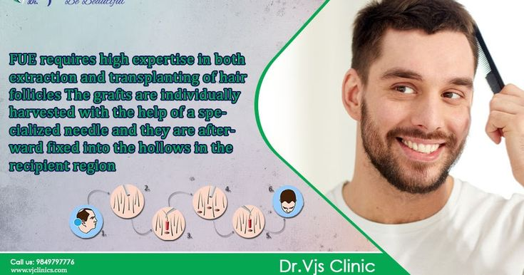 FUE Hair Transplant surgery comes with various benefits. To know the all the benefits of FUE hair transplant surgery you need to follow the link and read our blog post. We shared all the details about that you want to know.
