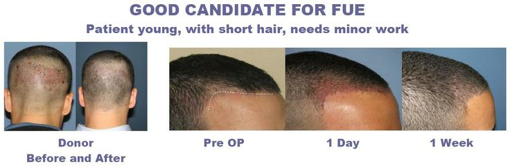 Time to say goodbye with hair loss! The breakthrough in technology has brought you a new and effective method to treat hair loss: FUE hair transplant!  http://hairparadise.org/fue-hair-transplant-gave-wayne-rooney-back-hair/