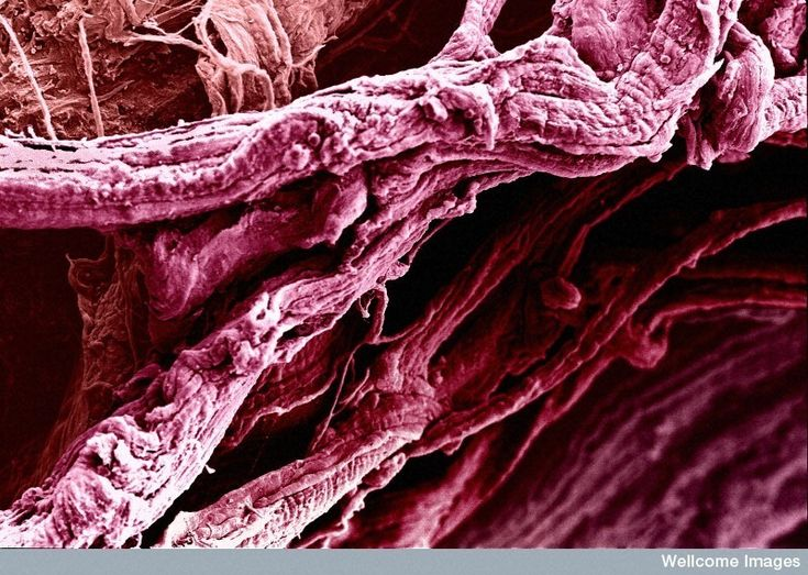 Image of the Week - December 18, 2017  CIL:39086 - http://www.cellimagelibrary.org/images/39086  Colorized scanning electron micrograph of thigh muscle fibrils.  David Gregory and Debbie Marshall  Attribution-NonCommercial-NoDerivs 2.0 UK: England & Wales (CC BY-NC-ND 2.0 UK)