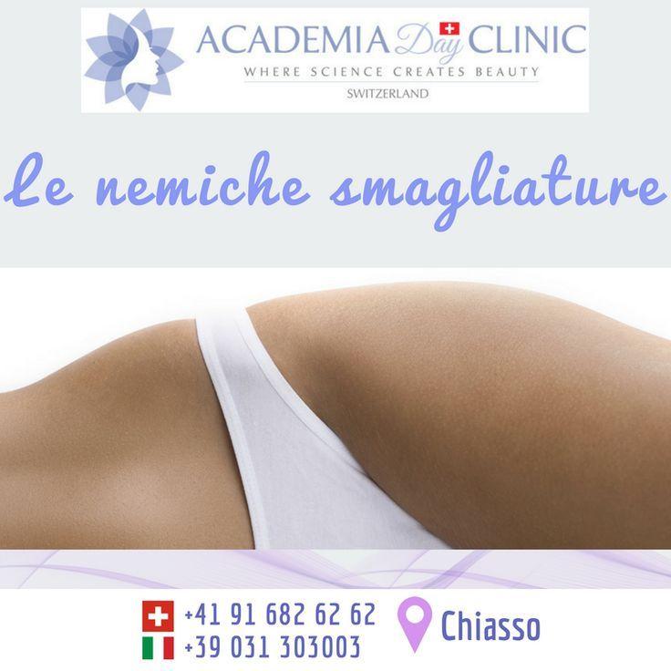 cademia Day Clinic 📍 Chiasso 📍 Le nemiche smagliature