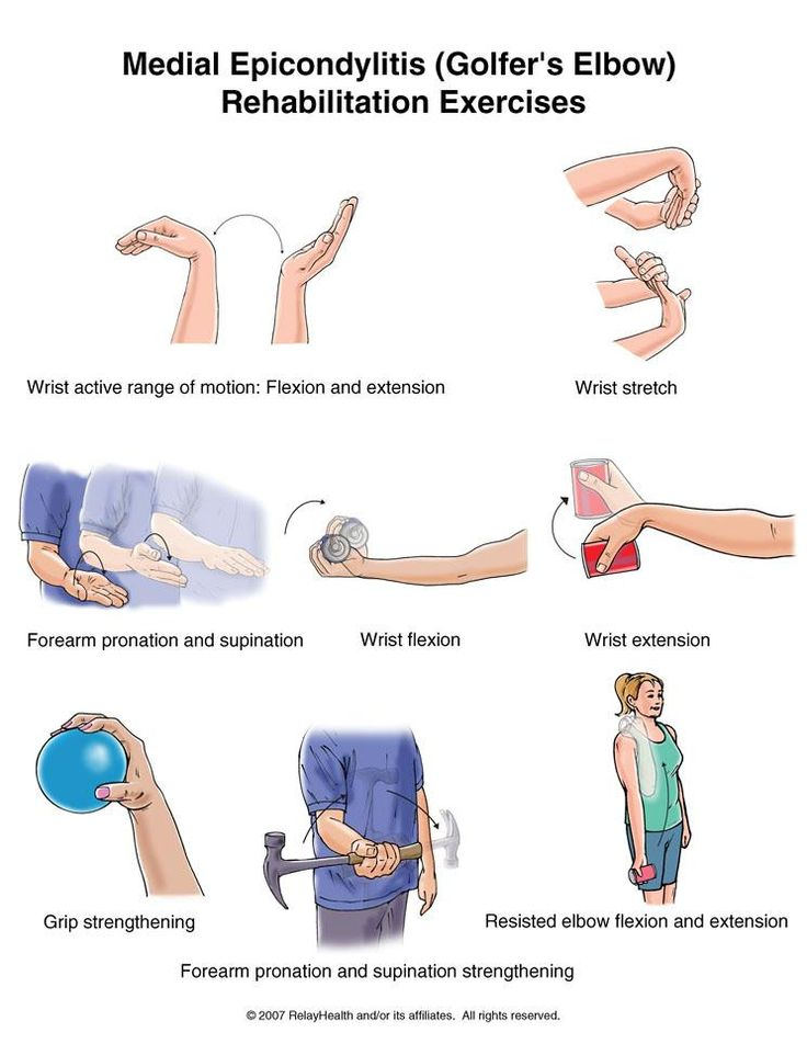 Best 40 Tennis Elbow images on Pinterest | Work outs, Exercises and ...