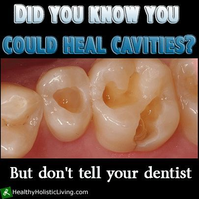 The food remedies that can heal cavities and tooth decay In order to restore the ratio of calcium and phosphorus in our blood, and to ena...