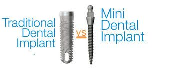 Mini dental implants are an alternative to traditional dental implants but are typically used in situations where a smaller implant is needed to fit into a narrow location. Smaller teeth and incisors are good candidates for mini dental implants as are devices that require stabilization such as lower jaw dentures.