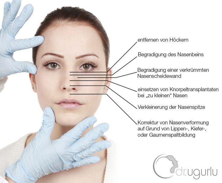 Nasenkorrektur Hamburg