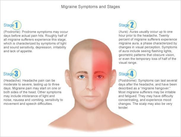 Anatomy In Motion - What Is A Migraine?  www.skillfultouchbodywork.com