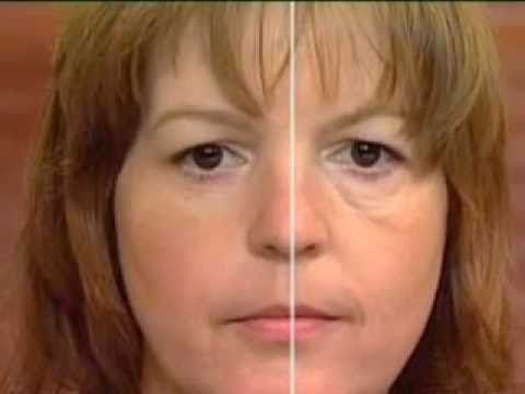 Eyesential Augenfältchen Tränensäcke Augenringe Zornesfalte Augenlifting kaufen